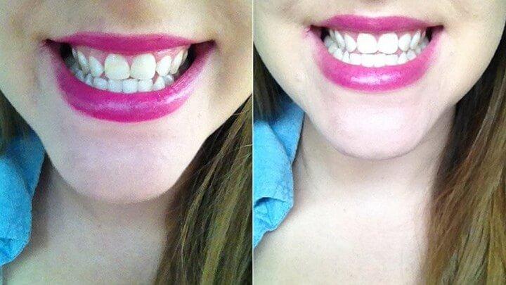 DIY Best Way To Teeth White
