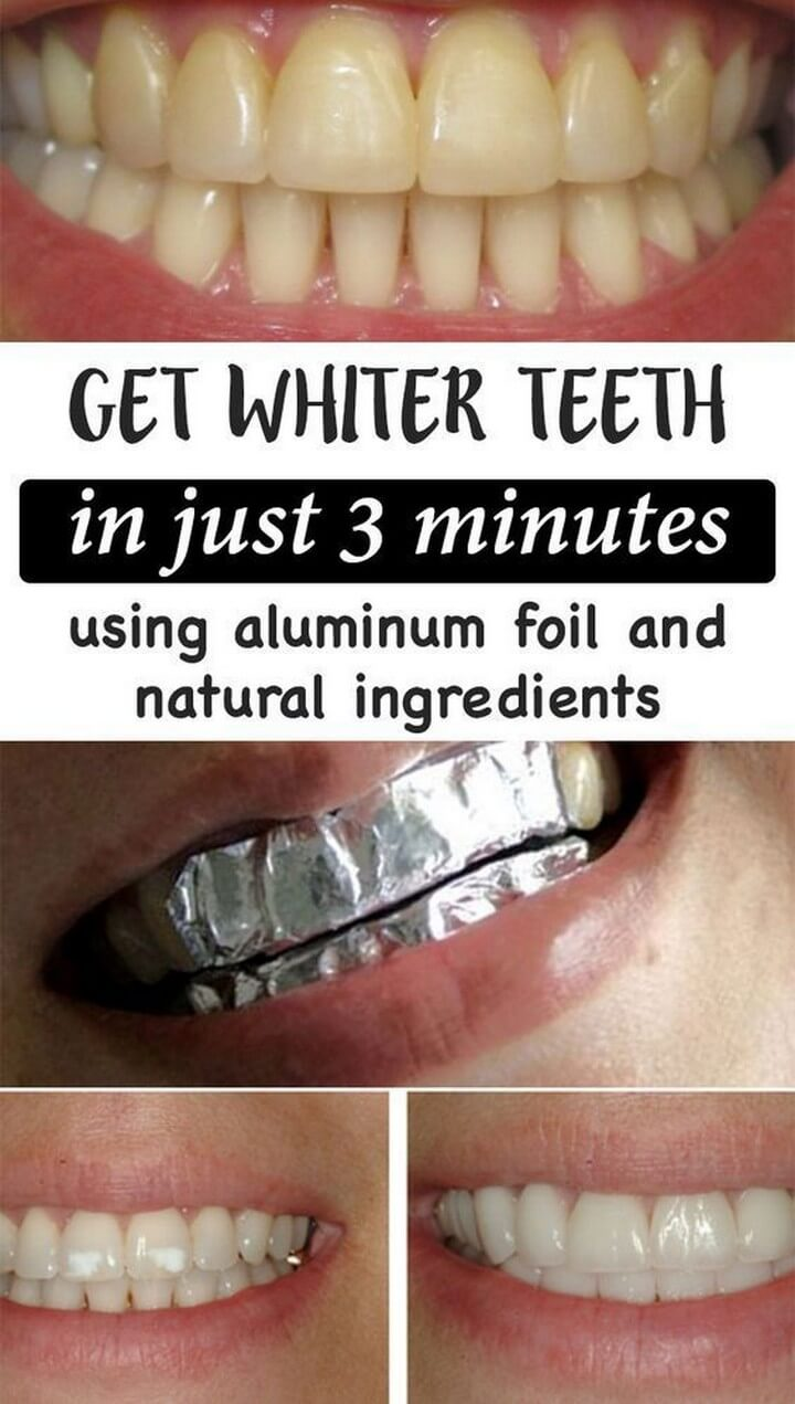 DIY Easy and Simple Teeth Whitening Idea
