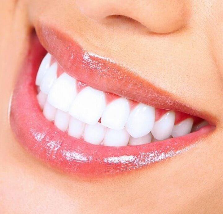32 Diy Teeth Whitening Fast With Naturally Ways Diy To Make