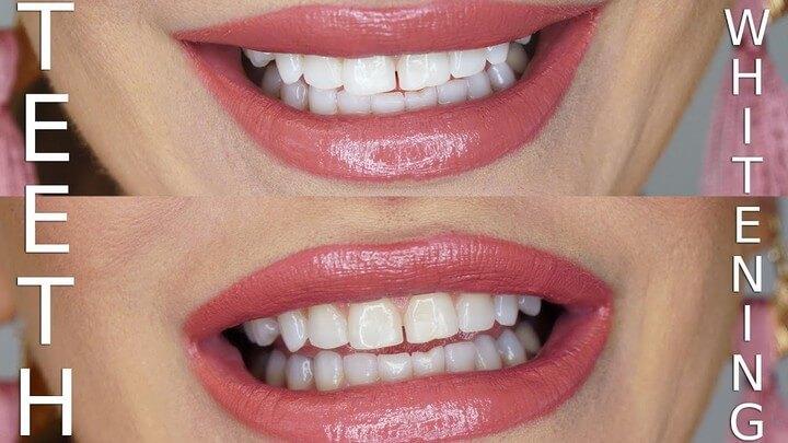 DIY Teeth Whitening Using Charcoal Baking Soda