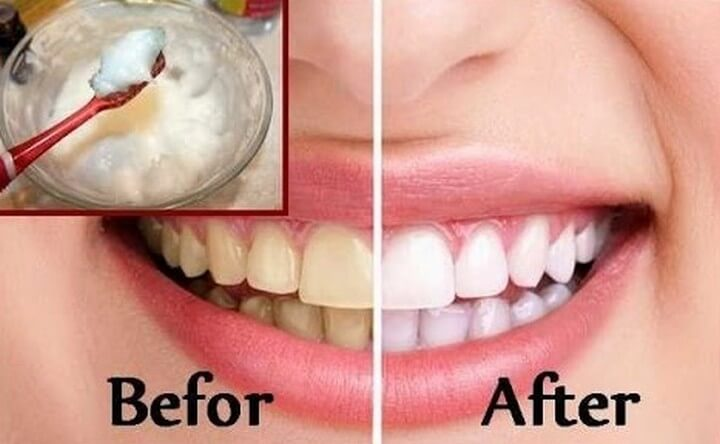 DIY Teeth Whitening at Home in 2 minutes