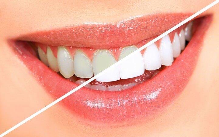 DIY Teeth Whitening in Hyderabad