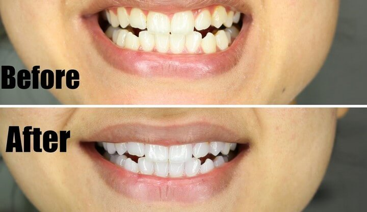 How To Teeth White In Just 5 Minutes