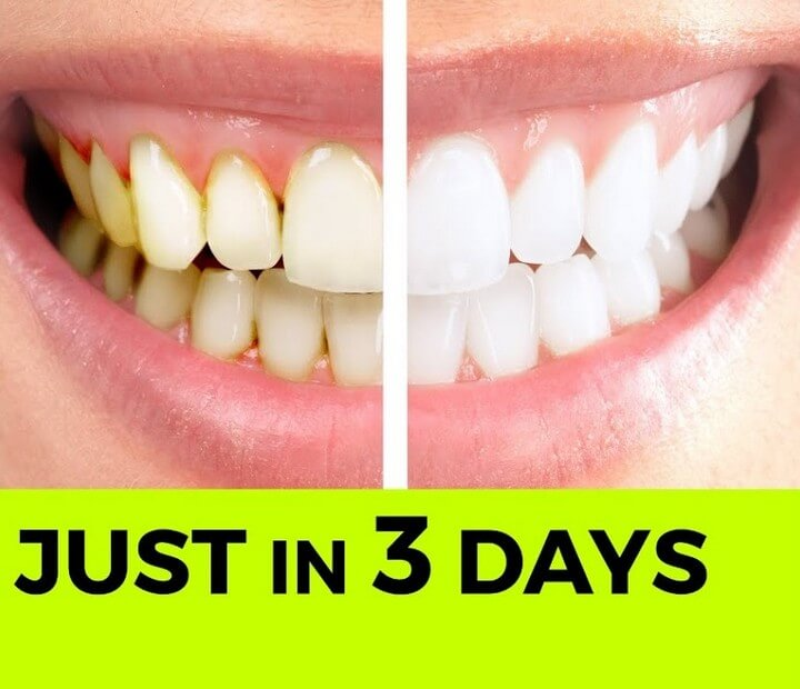 Instant Teeth Whitening Diy Without Baking Soda