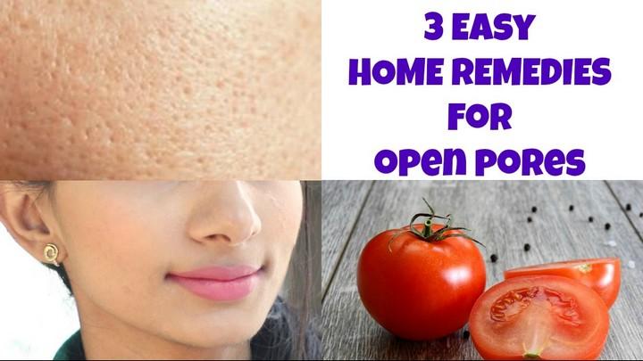 Open Pores Home Remedy