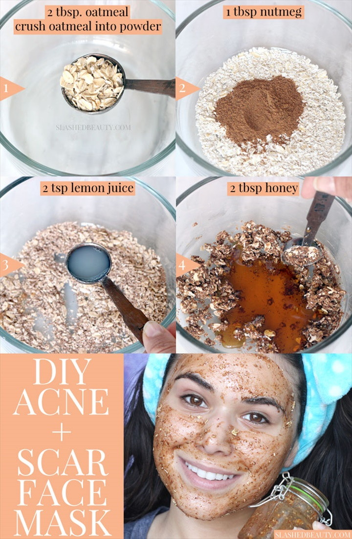 Best DIY Face Mask for Acne Acne Scars