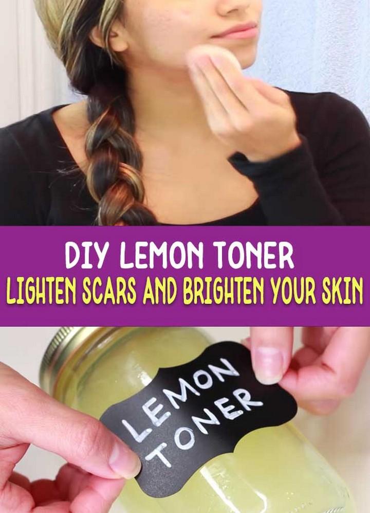 DIY Lemon Toner – Lighten Acne Scars Naturally