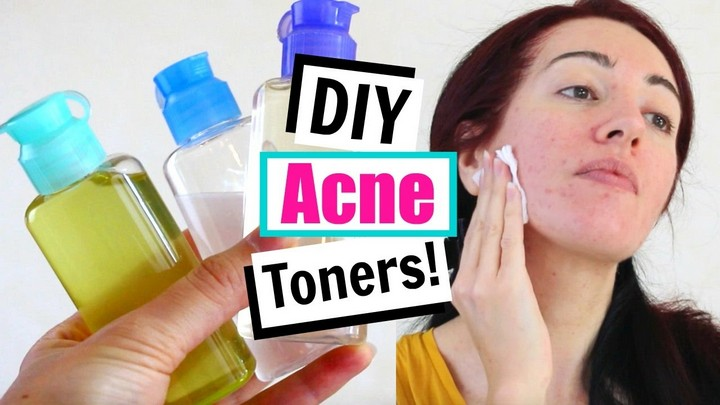 DIY Toner For Acne Oily Skin Home Remedies For Acne