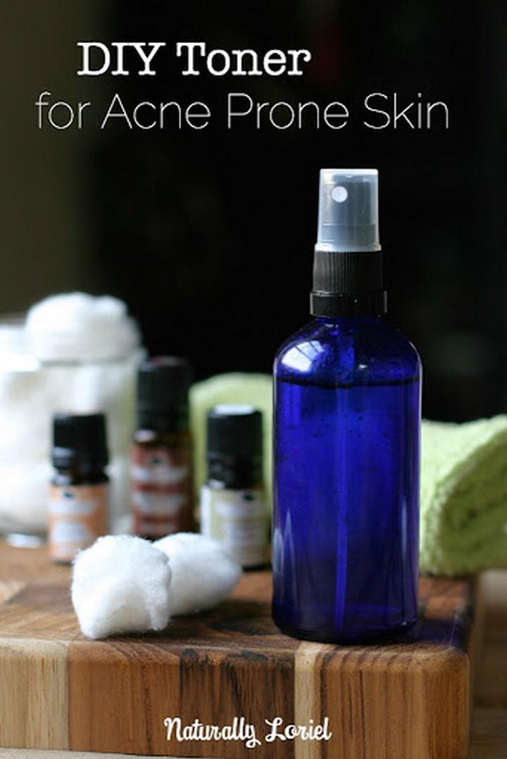 DIY Toner for Acne Prone Skin